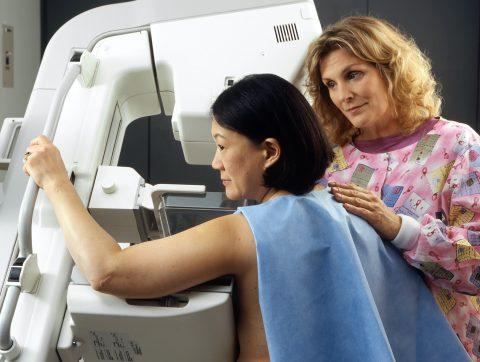 Une IA du MIT surpasse les modèles de dépistage du cancer du sein